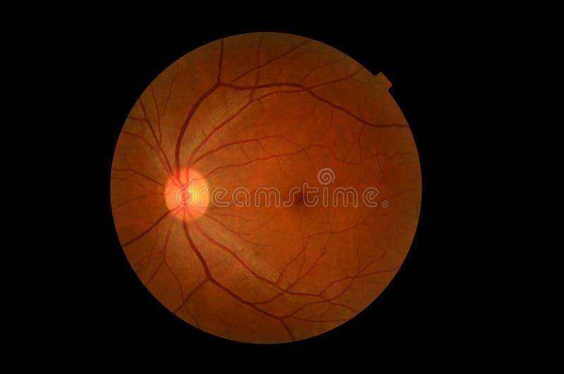 Medical photo tractional (eye screen) diabetes retinal screening. Medical photo tractional (eye screen), diabetes retinal screening stock images