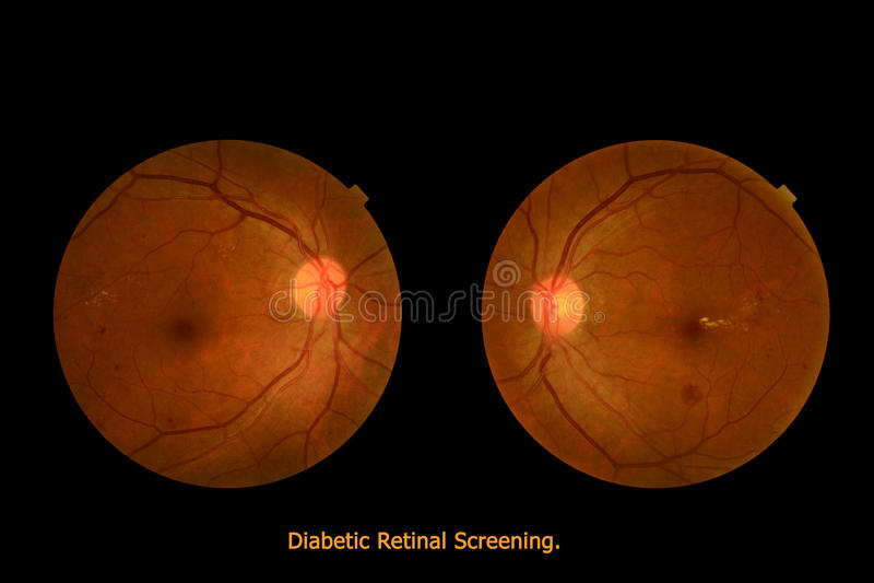 Medical photo tractional (eye screen) diabetes retinal screening stock images