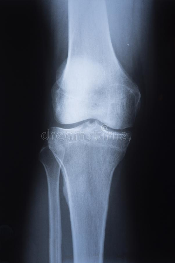 Medical X ray image of knee.  stock image