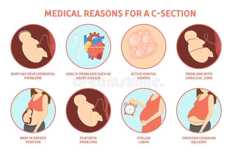 Medical reasons for cesarean delivery or c-section. stock illustration