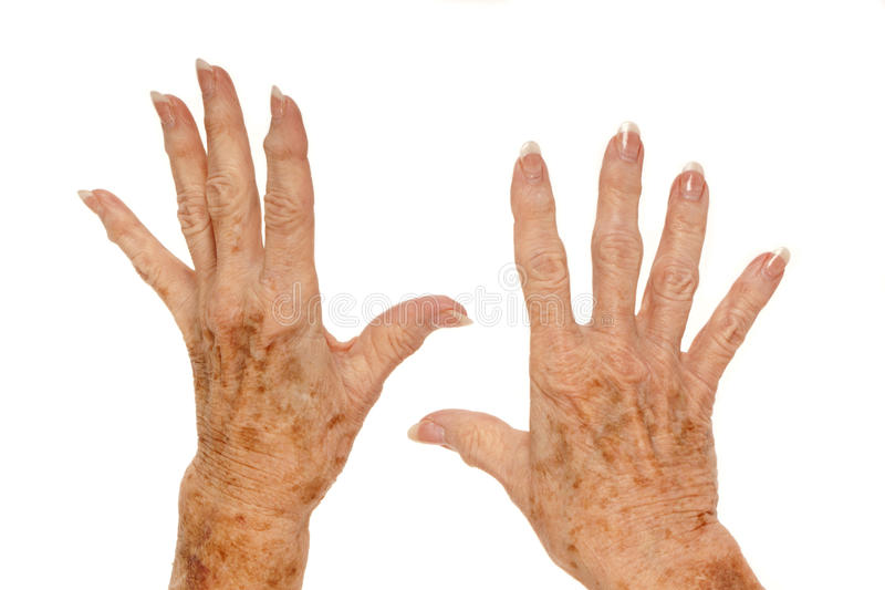 Medical: Rheumatoid Arthritis and Liver Spots. Female senior citizen hand with Rheumatoid Arthritis and age spots (also known as liver spots, Solar lentigo stock image