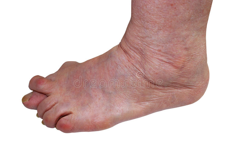 Medical, science practice of diagnosis of treatment, valgus bunion, leg with deformity valgus hallux Bunion,. The consequence of refusal of treatment, space for stock photos
