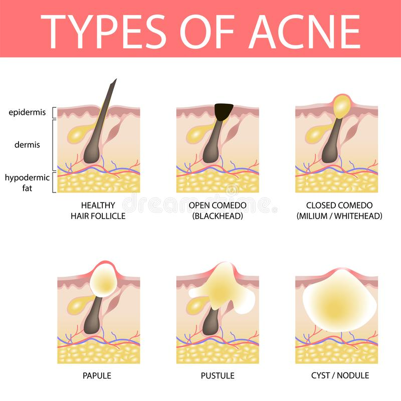 Medical vector illustration of different types of acne on human skin. Appearance of pimples in hair follicle vector illustration