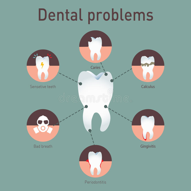 Medical vector infografics Dental problems. Tooth disease. Medical vector infografics. Dental problems stock illustration