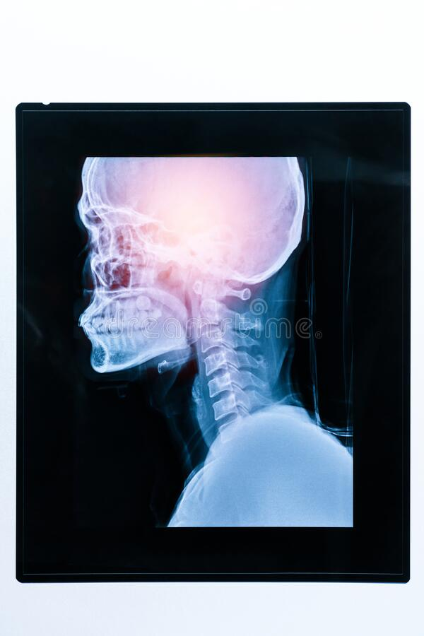 Free Medical X Ray Image Of Patient Head And Skull. Royalty Free Stock Photo - 207864955