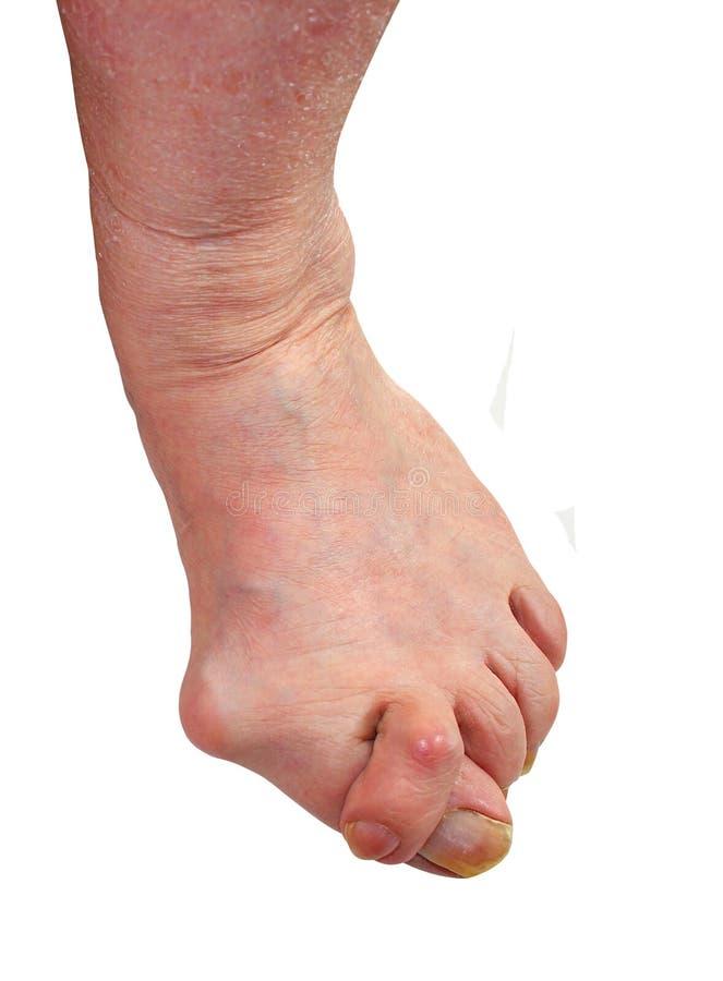 Medicina, borsite dell'alluce valga, gamba con borsite dell'alluce valga di alluce di deformità, fotografia stock