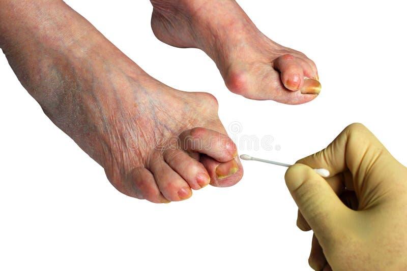 Medicina, borsite dell'alluce valga, gamba con borsite dell'alluce valga di alluce di deformità, immagine stock libera da diritti