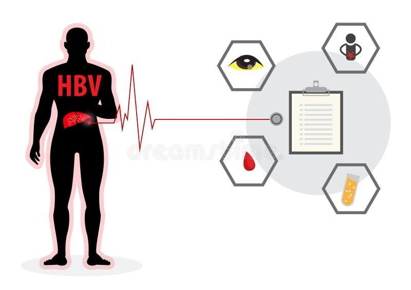 Medicina del virus dell'organo umano di affezione epatica di epatite virale A b c illustrazione di stock