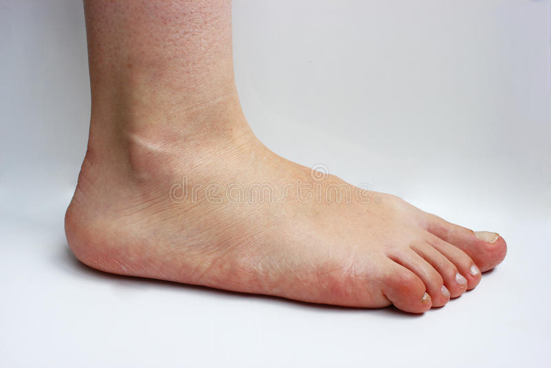 Medicina, piedi piatti, tarsoptosia, femmina del piede isolata immagine stock libera da diritti