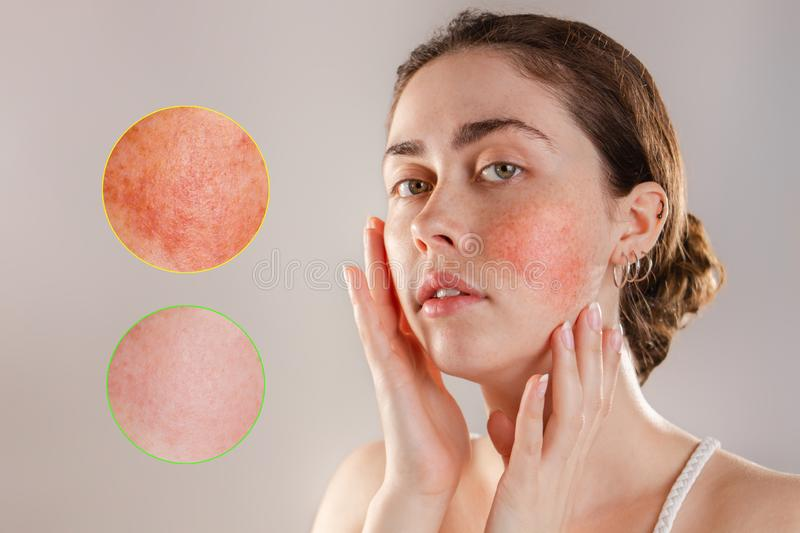 Medicine and cosmetology. Portrait of a young beautiful brunette woman with rosacea on her cheeks. Enlarged images of inflammation stock photo