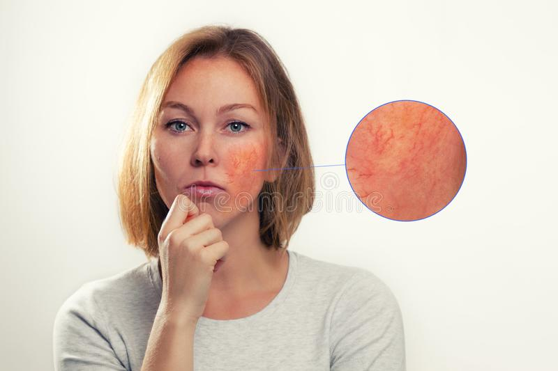 Medicine, cosmetology, rosacea. A blonde woman with rosacea-inflamed cheeks and blood vessels. Enlarged image of the focus of. Inflammation stock photo