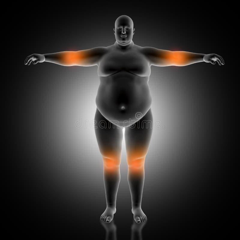 medicinsk bakgrund 3D av den överviktiga mannen med armbågen och höga knä stock illustrationer