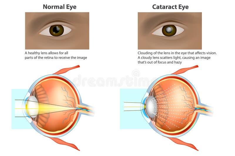 Medicinsk illustration av ett normalt öga och ett öga med en starr, royaltyfri illustrationer