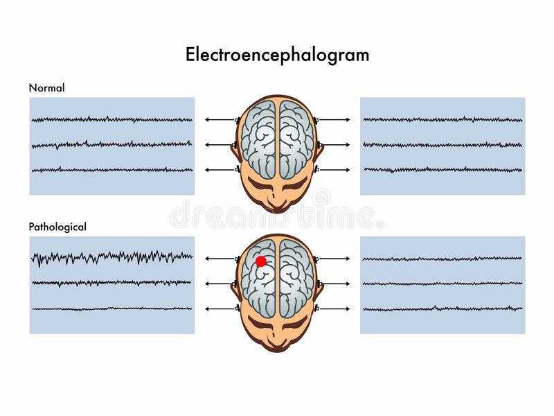 Electroencephalogram vektor illustrationer