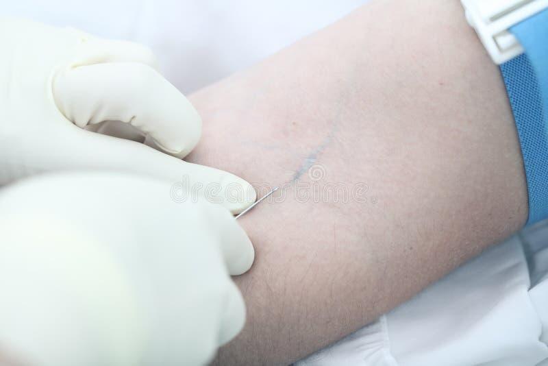 Medicinsk operation: intravenös injektion Storen specificerar arkivbild