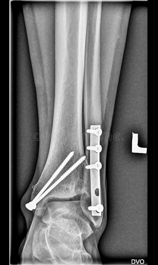 Medicinsk röntgenstråle för fot, lägre lemben, bruten ankel, tibiafibula med skruvar royaltyfri bild