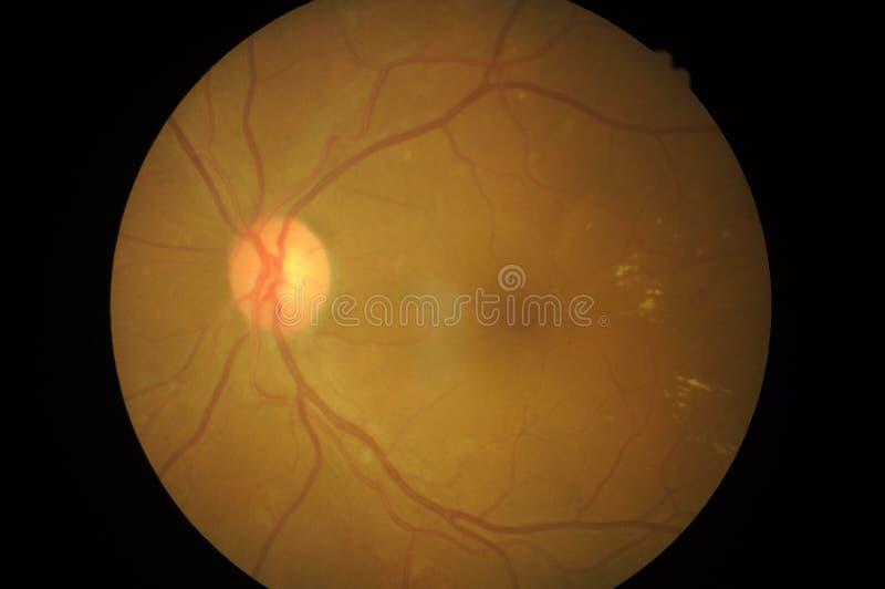 Medicinskt foto av retinal patologi, oordningar av scleraen, hornhinna, starr royaltyfria foton