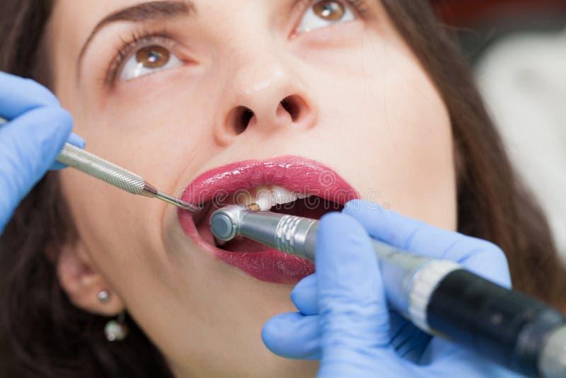 Medicinskt tandläkaretillvägagångssätt för närbild av tandpolermedel royaltyfria bilder