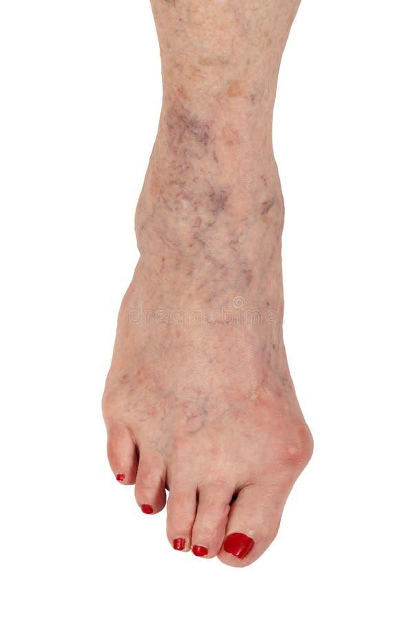 Medico: Artrite reumatoide, dito del piede del martello e vene varicose immagine stock libera da diritti