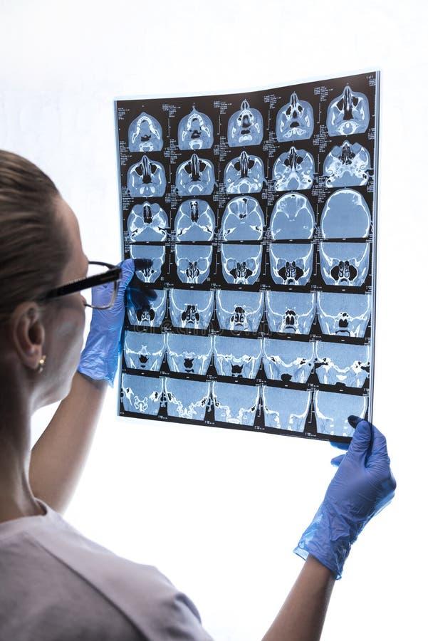 Medico che esamina un rontgen di un paziente fotografie stock libere da diritti