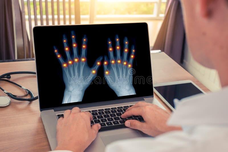Medico che guarda i raggi x delle mani con dolore nelle articolazioni delle dita Concetto di osteoartrite e di radiologia immagine stock