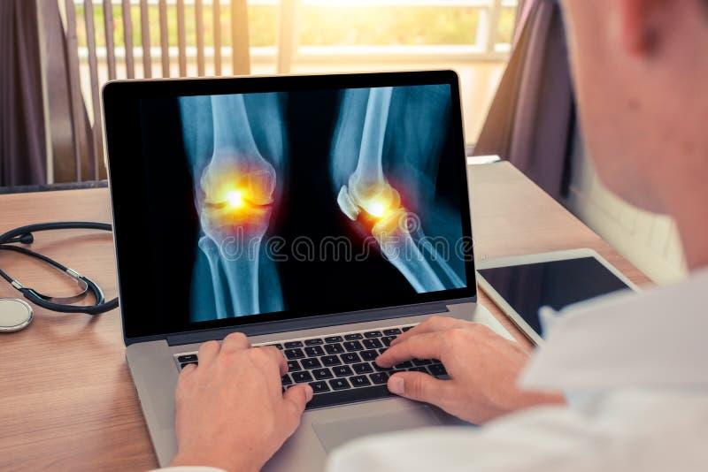 Medico che guarda un computer portatile con i raggi x delle gambe con dolore nel ginocchio Concetto di radiologia immagine stock