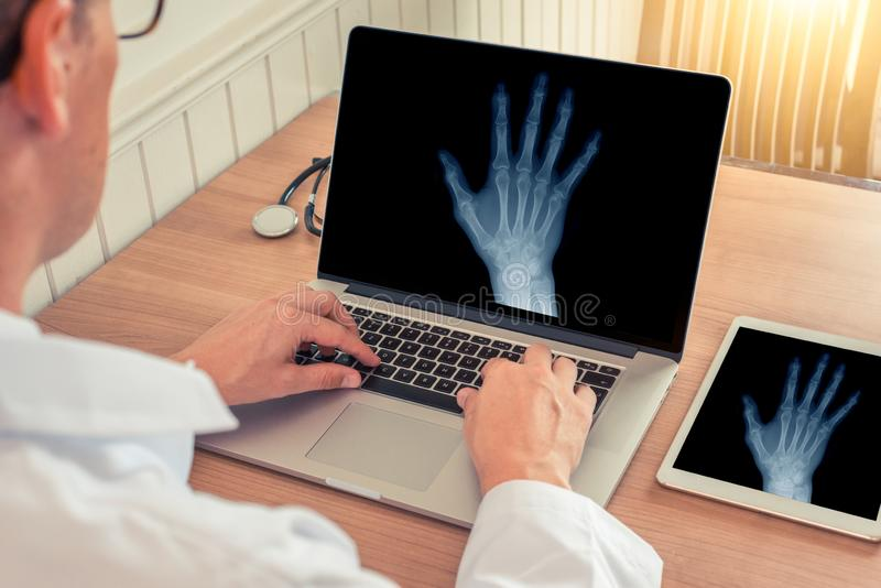 Medico che guarda un computer portatile con i raggi x di una mano destra in un ufficio medico Concetto di osteoartrite immagine stock