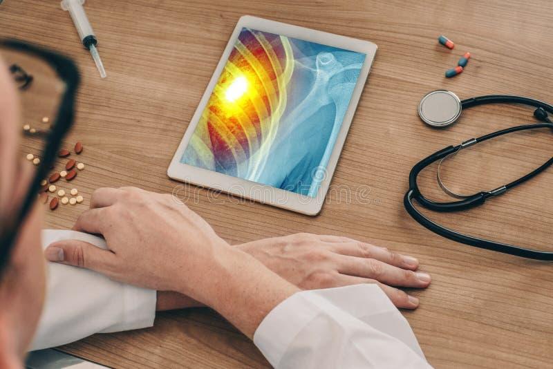 Medico che guarda una compressa digitale con i raggi x del petto con dolore sul cuore Concetto di attacco di cuore fotografia stock