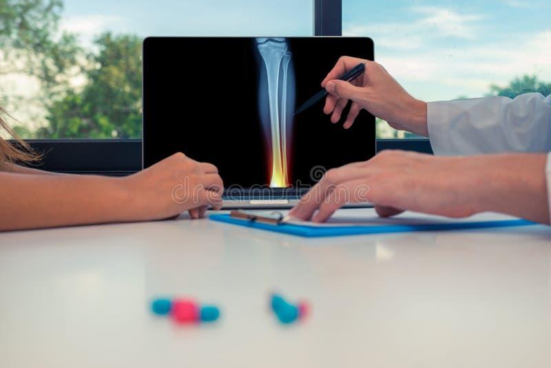 Medico che mostra i raggi x della gamba con dolore nella caviglia su un computer portatile ad un paziente della donna Pillole sul fotografia stock libera da diritti