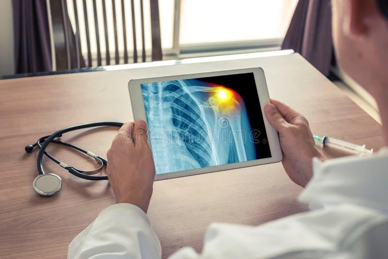 Medico che tiene una compressa digitale con i raggi x del petto e del dolore sulla spalla fotografie stock