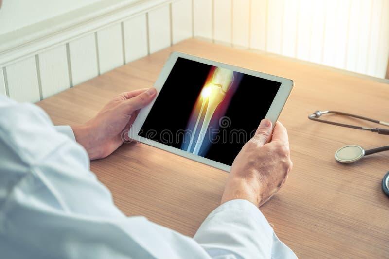 Medico che tiene una compressa digitale con i raggi x della gamba Dolore sul ginocchio esterno immagini stock libere da diritti