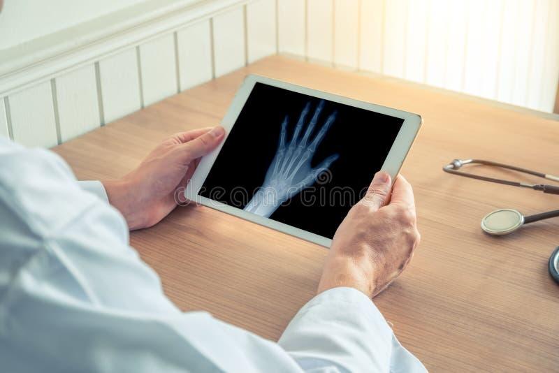 Medico che tiene una compressa digitale con i raggi x di una mano sinistra Concetto di osteoartrite fotografie stock libere da diritti