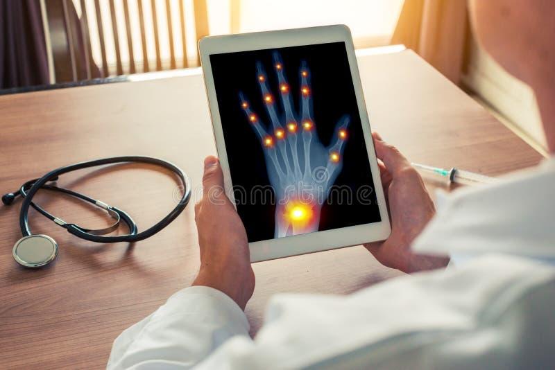 Medico che tiene una compressa digitale con i raggi x di una mano sinistra con dolore sui giunti del concetto di osteoartrite del immagini stock