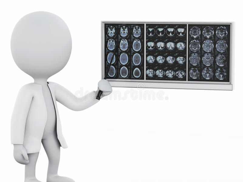 medico della gente bianca 3d con i film cranici del cervello illustrazione di stock