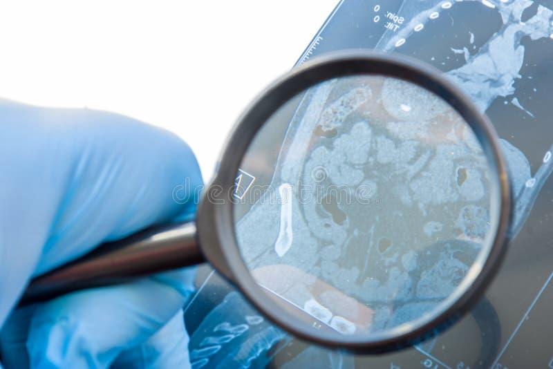 Medico esamina l'istantanea di RMI degli organi dell'addome, grande e degli intestini tenui La diagnosi attenta rara ed accade am fotografie stock libere da diritti