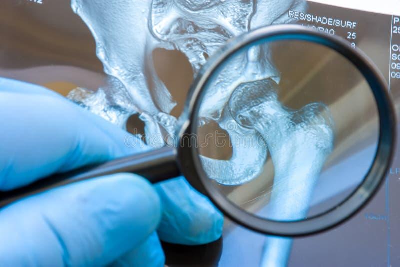 Medico esamina l'istantanea di RMI dell'articolazione dell'anca con la lente d'ingrandimento La diagnosi attenta rara ed accade a immagini stock