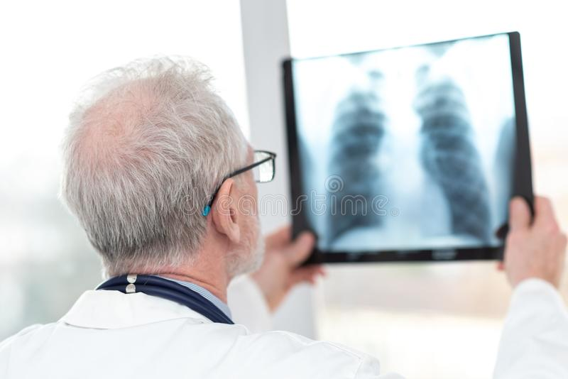 Medico maggiore che esamina raggi X immagini stock