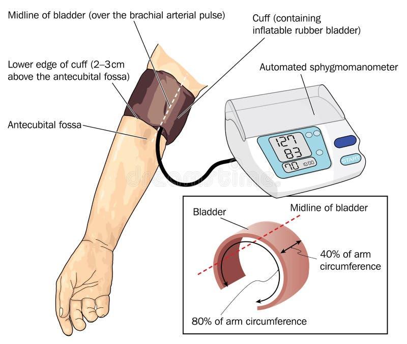 Medida de la presión arterial ilustración del vector