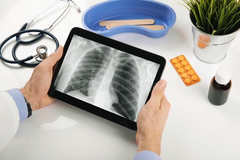 Medique a análise de resultados pacientes do raio X do pulmão na tabuleta digital fotos de stock