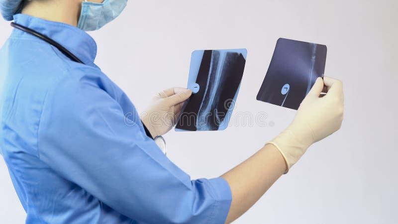 Medique a análise do raio X ferido dos ossos, fazendo o diagnóstico, cirurgia do hospital, trabalho imagem de stock