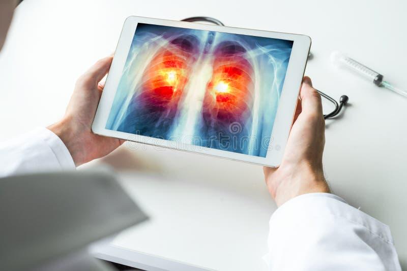 Medique a observação de um raio X do câncer pulmonar na tabuleta digital Conceito da radiologia foto de stock royalty free