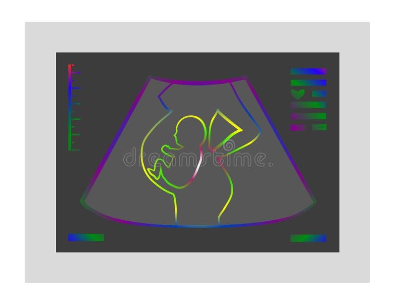 Medisch Echografie royalty-vrije stock afbeeldingen