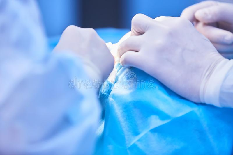 Medisch team van chirurgen in het ziekenhuis die minimale invasieve chirurgische acties doen Chirurgie werkende ruimte met stock afbeelding