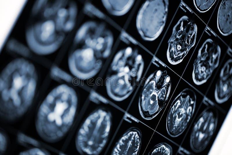 Medische achtergrond met MRI-aftastenbeeld van menselijk hoofd royalty-vrije stock foto
