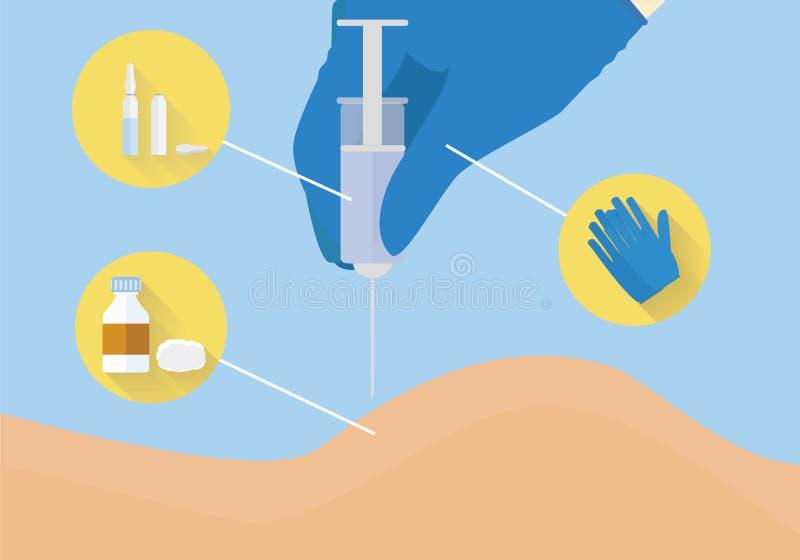 Medische apparatuur voor injectie en goederen voor injectie Intramusculaire injectie onderwijsillustratie Medische manipulatie bi royalty-vrije illustratie
