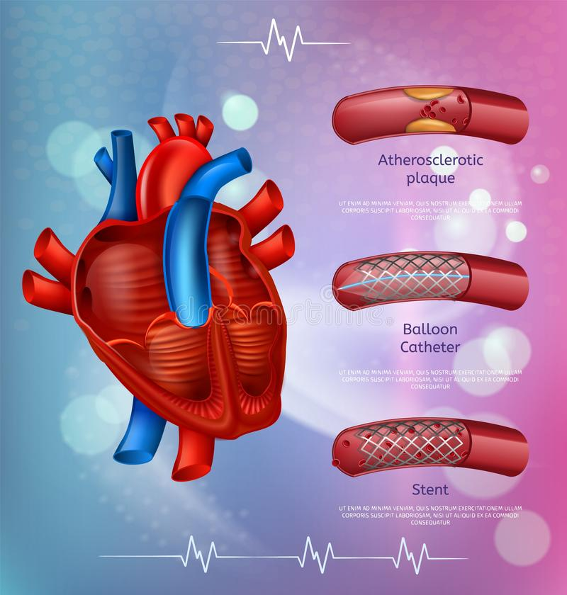 Medische de Behandelingsmethodes van de Banneratherosclerose stock illustratie