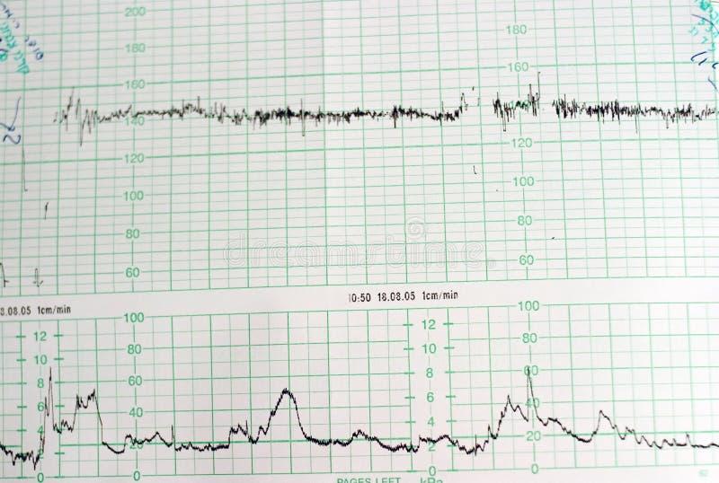 Medische Grafiek royalty-vrije stock afbeelding