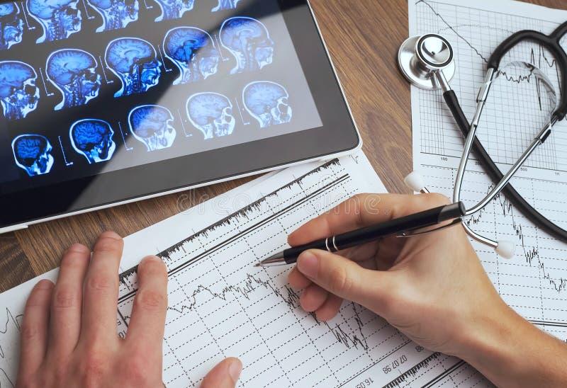 Medische hulpmiddelen Stethoscoop en cardiogram op een lijst stock fotografie