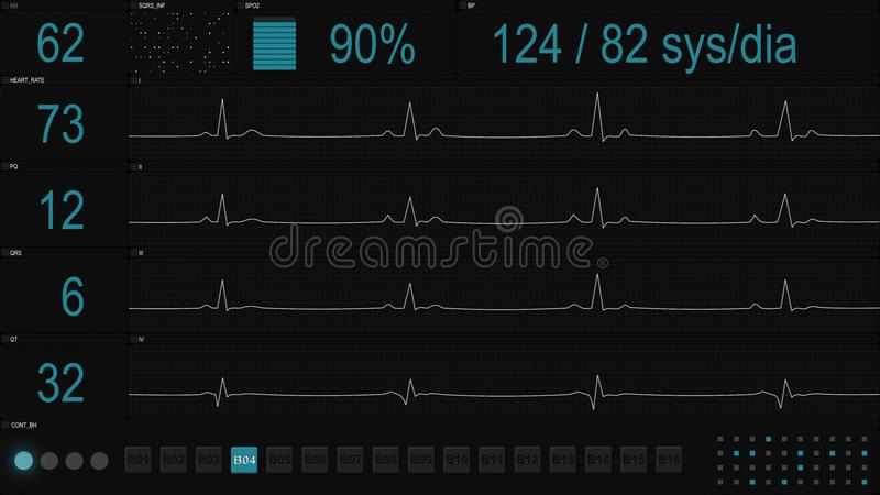 Medizinische Anzeige mit blauen Linien von ECG stock abbildung