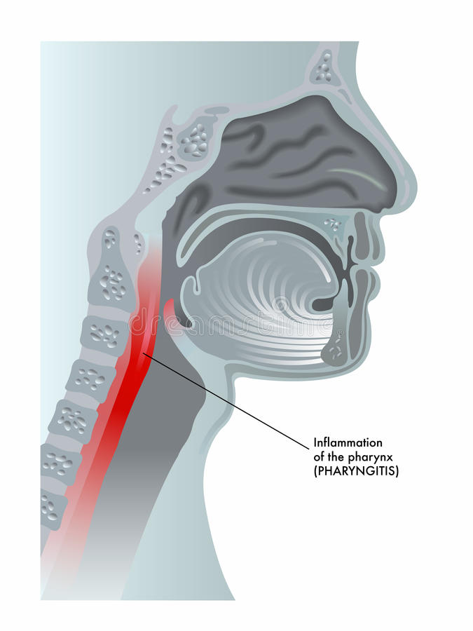 Pharyngitis stock abbildung
